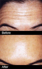 Botox treatment is carried out at our Birmingham Dentists Scott Arms Dental Practice