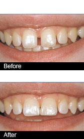 Best White fillings Birmingham