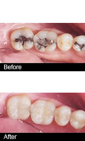 A Comparison between white fillings (tooth coloured) and Metallic Fillings (silver amalgam)