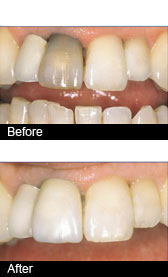 A photo of a tooth veneer made from porcelain