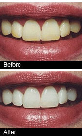Tooth whitening treatment at our Dentists in Birmingham