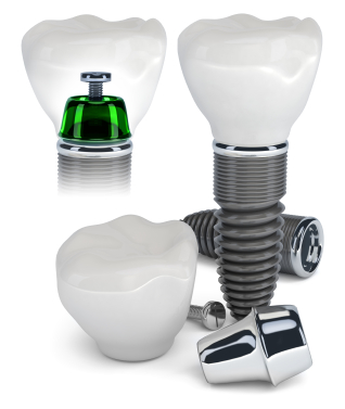Dental implants are simple to take care of, with regular brushing and flossing they can last a lifetime.