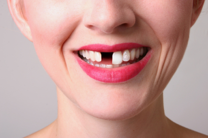 Knocked out tooth - Replace a missing tooth with a Dentist Birmingham