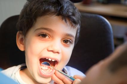 White Fillings by Dentist in Birmingham