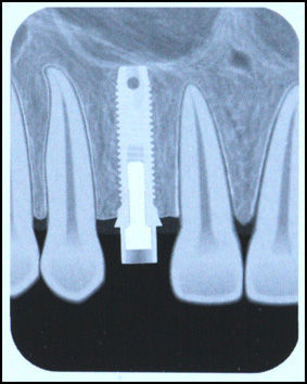 The osseointegration formed between titanium dental implants and bone