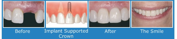 Photos of dental implant treatment by our award winning Birmingham Dentists