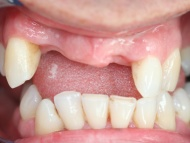 Photo 1 of a dental implant case