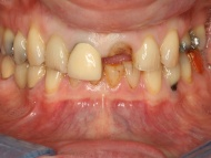Photo 1 of Birmingham Teeth Implant case 2