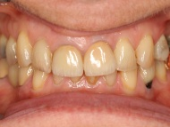 Photo 2 of Birmingham Teeth Implant case 2