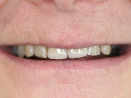 Photo 3 of Birmingham Teeth Implant case 2