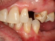 Photo 1 of a dental implants case at Scott Arms Dental Practice in Birmingham