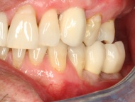 Photo 2 of a dental implants case at Scott Arms Dental Practice in Birmingham