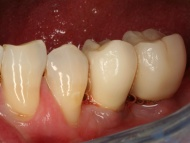 Photo 3 of a dental implants case at Scott Arms Dental Practice in Birmingham