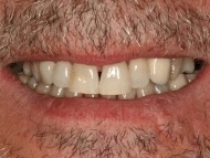 Photo 4 of a dental implants case at Scott Arms Dental Practice in Birmingham
