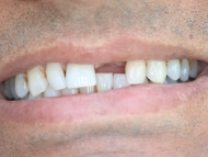 Photo 1 where a dental implant was used to replace a missing tooth in a Birmingham patient