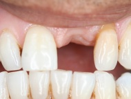 Photo 2 where a dental implant was used to replace a missing tooth in a Birmingham patient