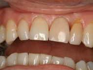 Photo 3 where a dental implant was used to replace a missing tooth in a Birmingham patient