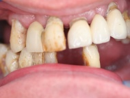 Photo 1 where a dental implant bridge was used to stabilise a denture at Scott Arms Dental Practice in Birmingham
