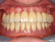 Photo 3 where a dental implant bridge was used to stabilise a denture at Scott Arms Dental Practice in Birmingham