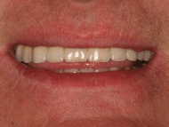 Photo 4 where a dental implant bridge was used to stabilise a denture at Scott Arms Dental Practice in Birmingham