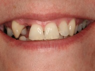 Photo 1 where a dental implant is used to replace a missing tooth in a Birmingham dental implant patient