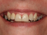 Photo 2 where a dental implant is used to replace a missing tooth in a Birmingham dental implant patient