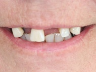 Photo 1 where dental implants were used in conjunction with fixed bridgework on a patient in Birmingham