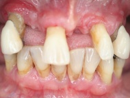 Photo 2 where dental implants were used in conjunction with fixed bridgework on a patient in Birmingham