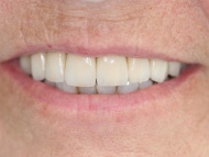 Photo 3 where dental implants were used in conjunction with fixed bridgework on a patient in Birmingham
