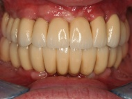Photo 3 where dental implants were used to support bridgework on the upper and lower teeth of a patient undergoing dental implant treatment