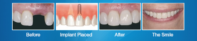 dental-implants-seq-1