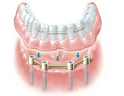 denture stabilisation from £3950 - £7900