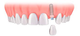 single implant and crown for £2035 - £2472