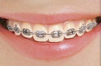 Silver Braces Color