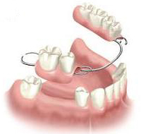 dentures from £330 - £910