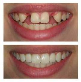 replacing missing front teeth with single implants and crown - before and after