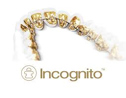 Incognito Lite System of Lingual Braces in Birmingham