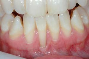periodontal treatment for receding gums