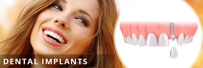 dentalimplants-shorter