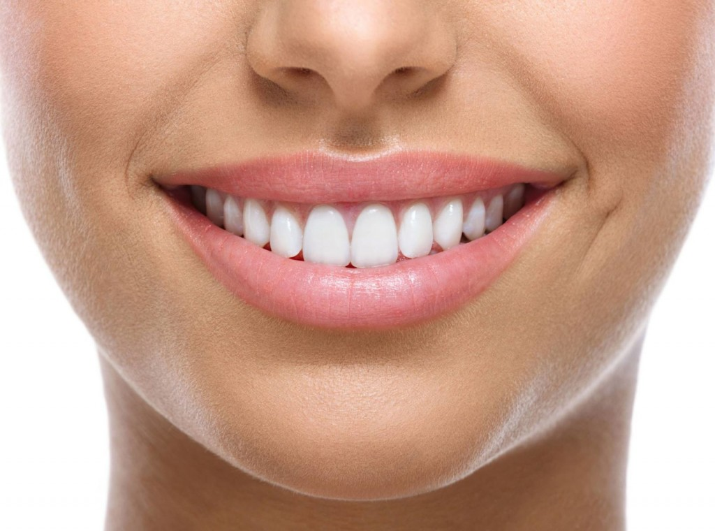 teeth-whitening-birmingham