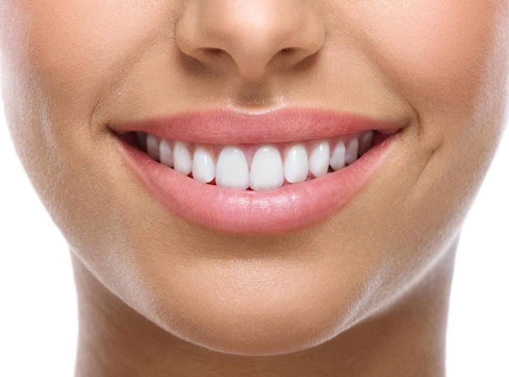teeth-whitening-birmingham