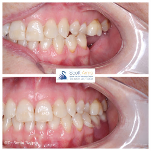 Lower denture with a clear clasp IMG 444